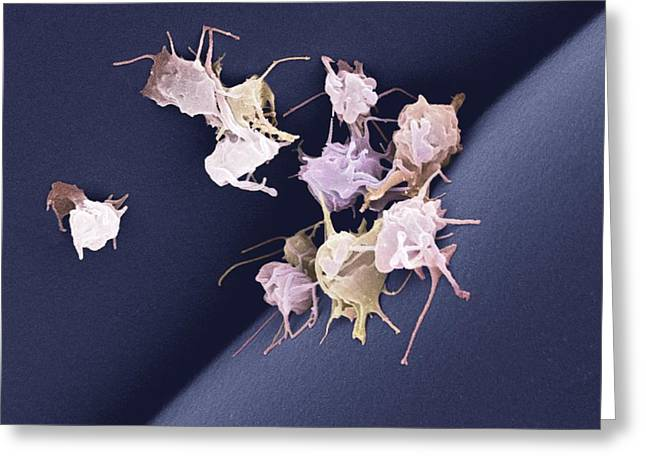 Adhering Greeting Cards - Activated Platelets, Sem Greeting Card by Steve Gschmeissner