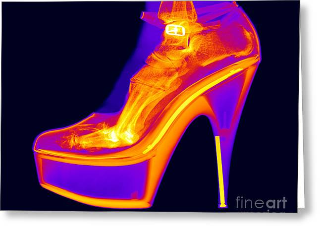 High Heeled Shoes Greeting Cards - An X-ray Of A Foot In A High Heel Shoe Greeting Card by Ted Kinsman