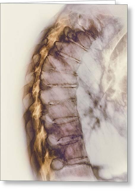 Inflammation Greeting Cards - Ankylosing Spondylitis X-ray Greeting Card by Cnri