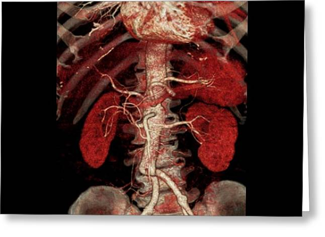 Aortic Aneurysm Ct Scan Greeting Card by Zephyr