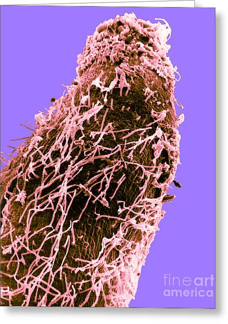 Nitrogen Greeting Cards - Bacteria On Sorghum Root Tip Greeting Card by Science Source