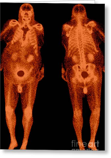 Metabolism Greeting Cards - Bone Scans Greeting Card by Medical Body Scans