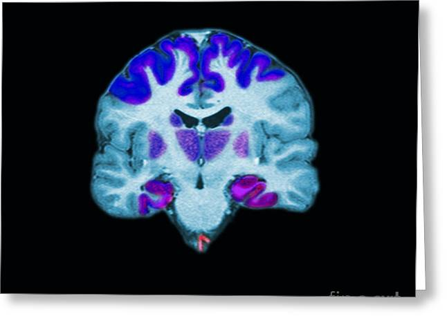 Color Enhanced Greeting Cards - Brain Areas Affected By Alzheimers Greeting Card by Medical Body Scans
