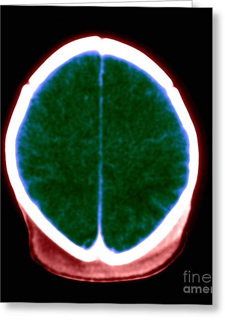Suffocation Greeting Cards - Brain Damage From Lack Of Oxygen Greeting Card by Medical Body Scans