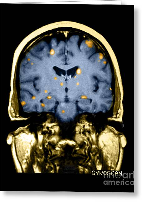 Diagnose Greeting Cards - Brain Metastasis From Breast Cancer Greeting Card by Medical Body Scans