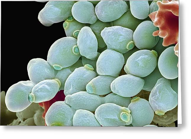 Biological Greeting Cards - Candida Albicans Yeast Cells, Sem Greeting Card by Steve Gschmeissner
