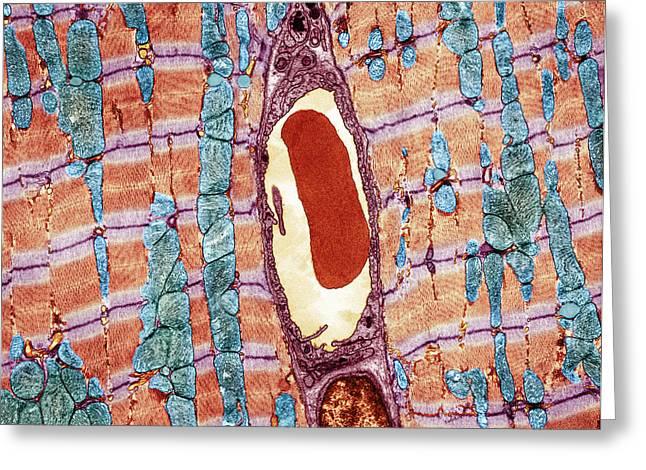 Transverse Tubules Greeting Cards - Cardiac Muscle And Capillary, Tem Greeting Card by Thomas Deerinck, Ncmir