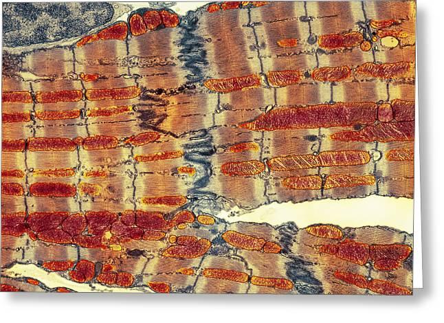Transverse Tubules Greeting Cards - Cardiac Muscle, Tem Greeting Card by Thomas Deerinck, Ncmir