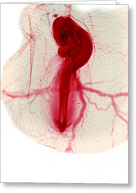 Bird Brain Greeting Cards - Chicken Embryo, Light Micrograph Greeting Card by Dr Keith Wheeler