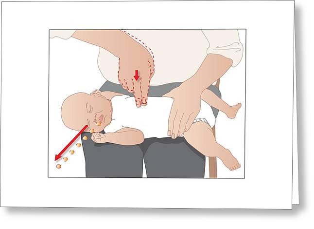 Choking Greeting Cards - Choking First Aid, Artwork Greeting Card by Peter Gardiner