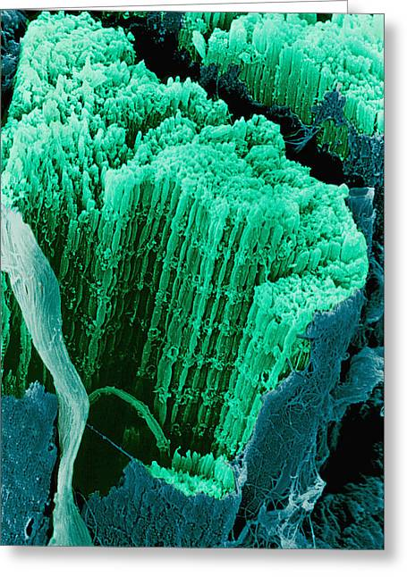 Striated Muscle Greeting Cards - Coloured Sem Of Skeletal (striated) Muscle Fibres Greeting Card by Steve Gschmeissner