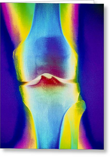 Knee Joint Greeting Cards - Coloured X-ray Of A Human Knee Joint Greeting Card by Mehau Kulyk