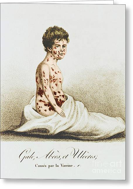 Bad Drawing Greeting Cards - Development Of Smallpox Greeting Card by Science Source