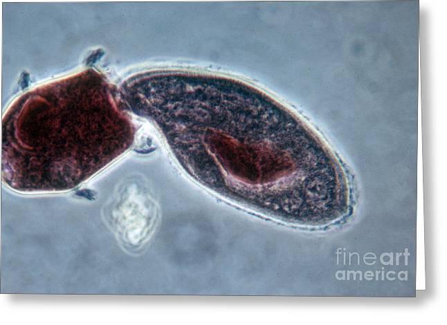 Unicellular Greeting Cards - Didinium Nasutum, Ingesting  Paramecium Greeting Card by Eric V. Grave