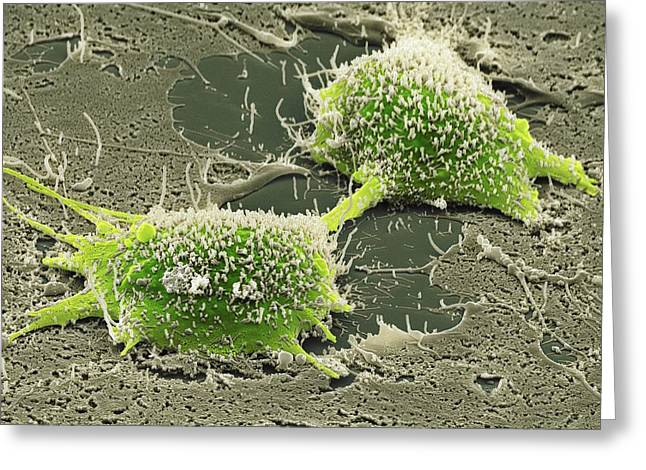Gi Greeting Cards - Dividing Cancer Cell, Sem Greeting Card by Steve Gschmeissner