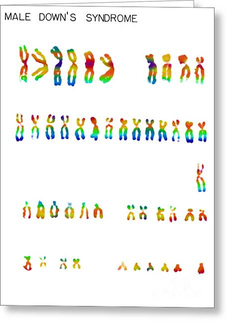 Micrography Greeting Cards - Downs Syndrome Karyotype Greeting Card by Omikron