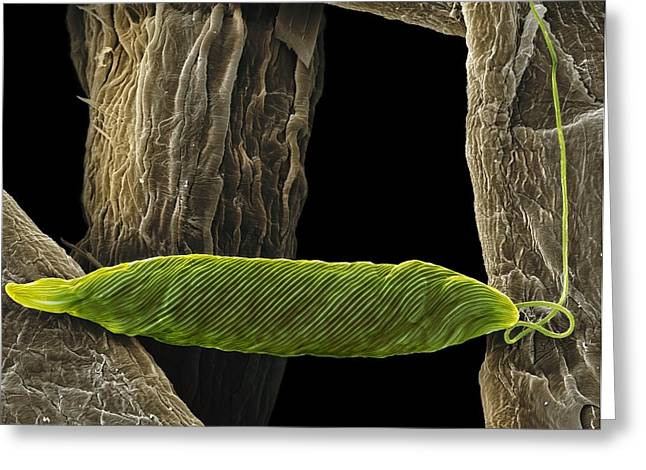 Unicellular Greeting Cards - Euglena Flagellate Protozoan, Sem Greeting Card by Steve Gschmeissner