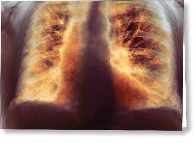 80s Greeting Cards - Fibrosing Alveolitis, X-ray Greeting Card by