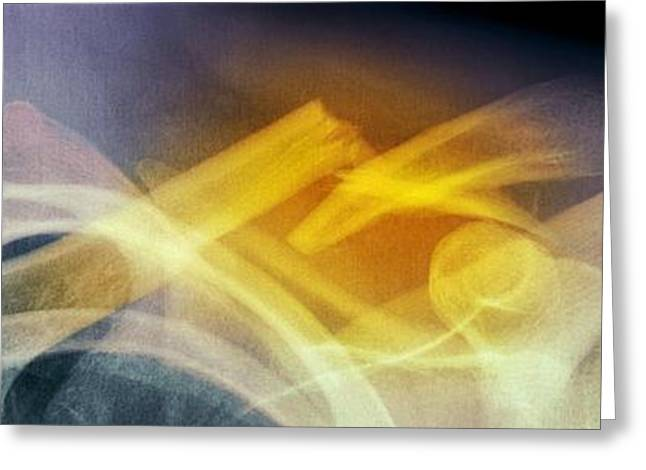 Medical Greeting Cards - Fractured Collar Bone, X-ray Greeting Card by Du Cane Medical Imaging Ltd