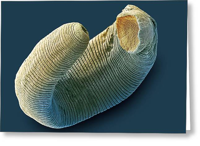 False Front Greeting Cards - Freshwater Leech, Sem Greeting Card by Steve Gschmeissner