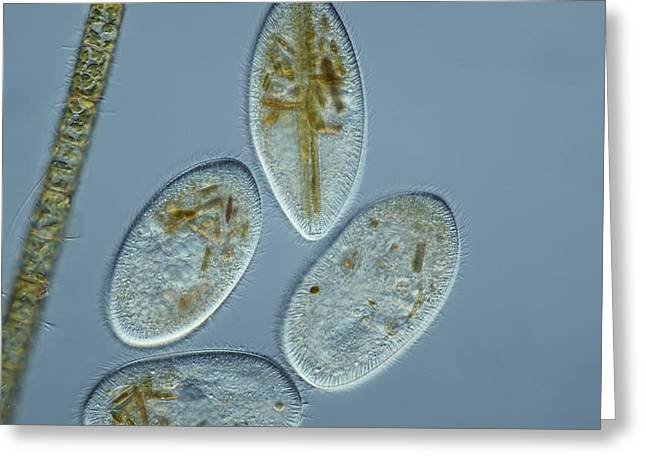 Contractile Vacuole Greeting Cards - Frontonia Protozoa, Light Micrograph Greeting Card by Frank Fox