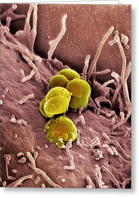 Microbiological Greeting Cards - Gonorrhoea Bacteria, Sem Greeting Card by