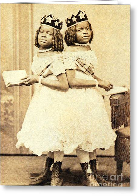 Mccoy Greeting Cards - 2 Headed Girl Millie-chrissie Greeting Card by Photo Researchers