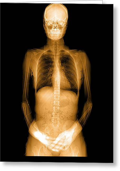 Cat Scan Greeting Cards - Human Body X-ray And Ct Greeting Card by Medical Body Scans