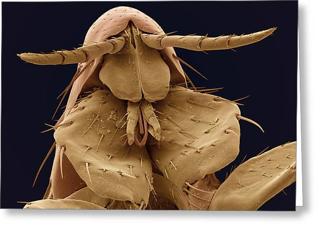 Biology Greeting Cards - Human Flea, Sem Greeting Card by Steve Gschmeissner