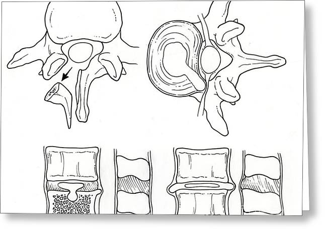 Disk Greeting Cards - Illustration Of Spinal Disk Pathologies Greeting Card by Science Source
