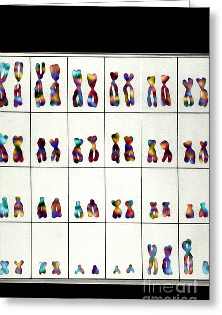 Micrography Greeting Cards - Karyotype Of Male Chromosomes Greeting Card by Omikron