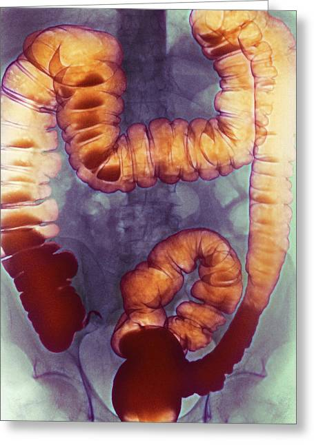 Rectum Greeting Cards - Large Intestine, X-ray Greeting Card by Cnri