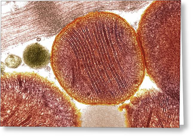 Mitochondria Greeting Card by Steve Gschmeissner
