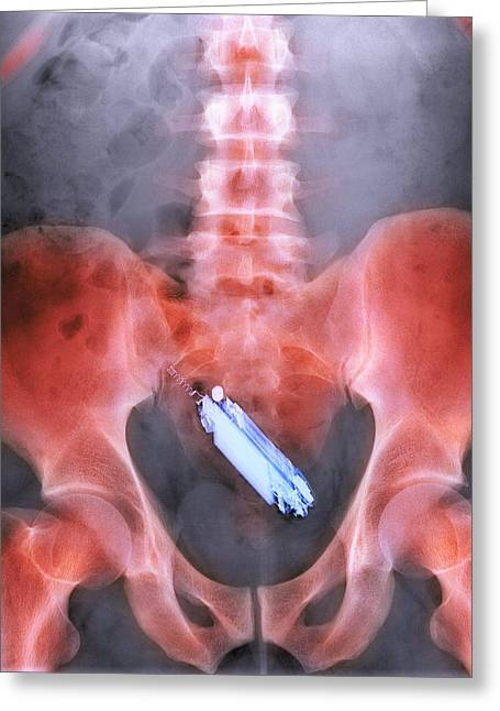 Mobile Phone In A Person's Rectum, X-ray Greeting Card by