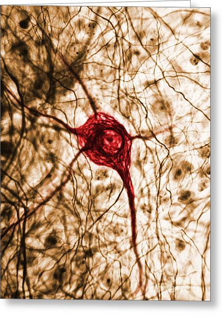 Recently Sold -  - Enhanced Greeting Cards - Neuron, Tem Greeting Card by Science Source