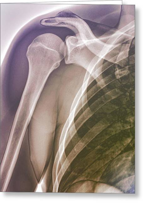 Normal Shoulder, X-ray Greeting Card by Zephyr