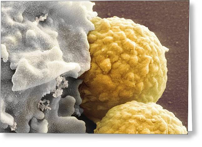 Phagocytosis Greeting Cards - Phagocytosis Of Fungus Spores, Sem Greeting Card by Prof Matthias Gunzer