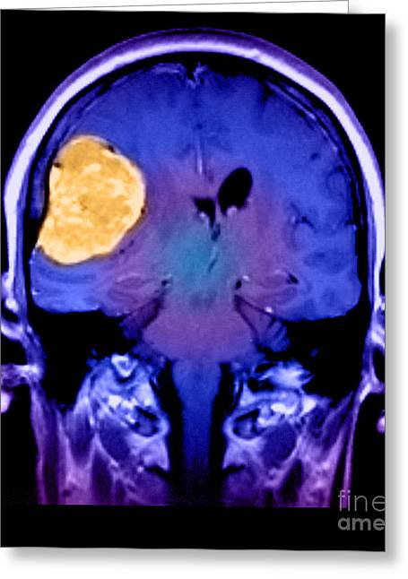 Color Enhanced Greeting Cards - Right Sided Meningioma Greeting Card by Medical Body Scans