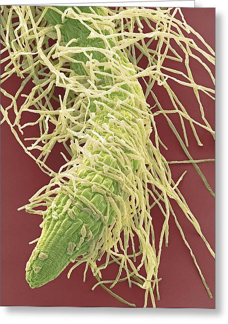 Plant Roots Greeting Cards - Root Tip From A Seedling, Sem Greeting Card by Steve Gschmeissner