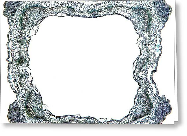 Vascular Bundle Greeting Cards - Sage Stem, Light Micrograph Greeting Card by Dr Keith Wheeler