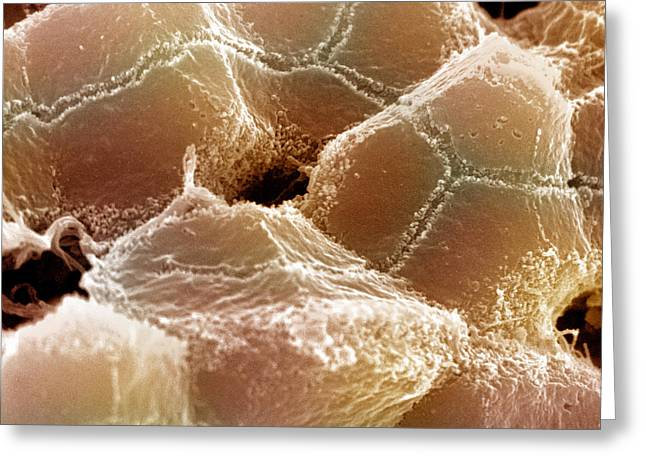 Sem Of Liver Greeting Card by Science Source
