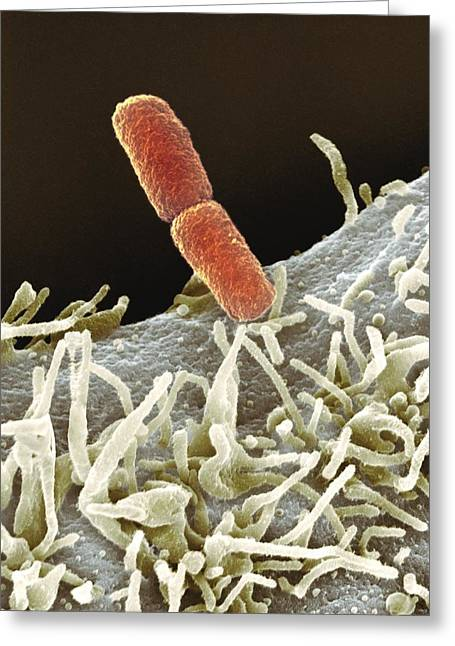 Coloured Greeting Cards - Shigella Bacteria, Sem Greeting Card by