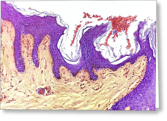 Skin Layers, Light Micrograph Greeting Card by Steve Gschmeissner