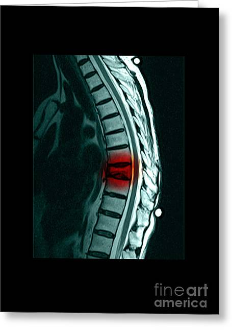 Color Enhanced Greeting Cards - Spinal Compression Fracture Greeting Card by Medical Body Scans