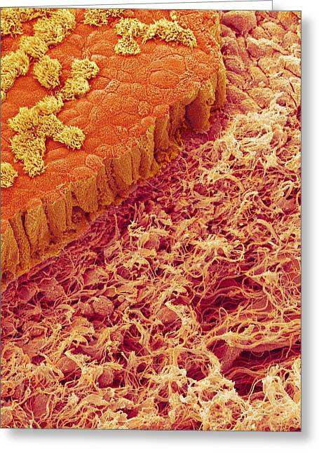 Basement Greeting Cards - Trachea Lining, Sem Greeting Card by Susumu Nishinaga