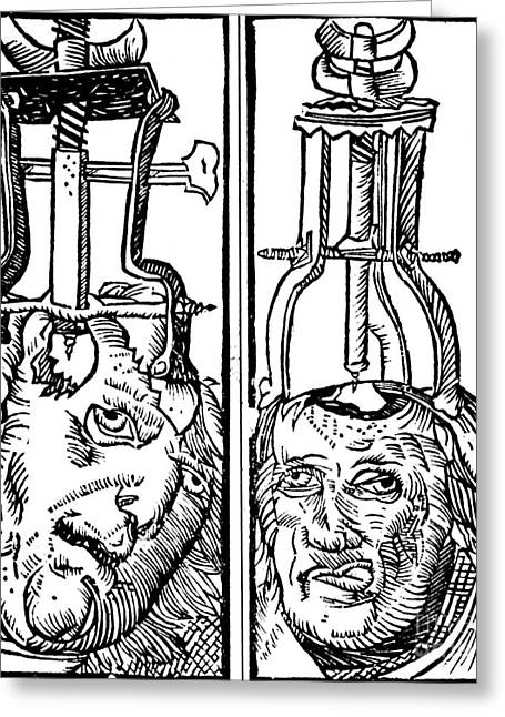 Trepanning 1525 Greeting Card by Science Source