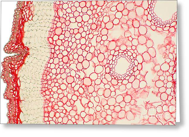 Umbrella Pine Greeting Cards - Umbrella Pine Stem Greeting Card by Ted Kinsman