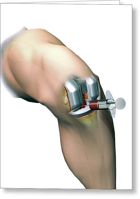 Woundcare Gel Therapy, Artwork Greeting Card by D & L Graphics