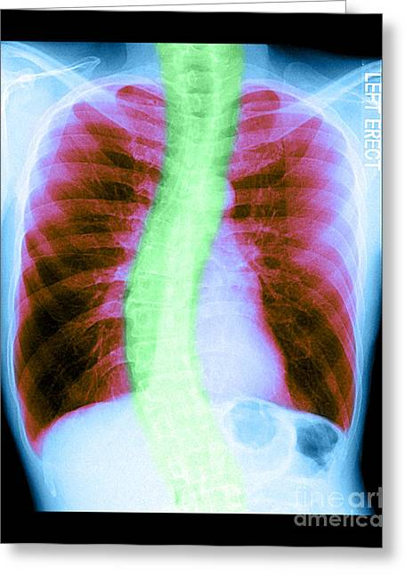 Chest Greeting Cards - X-ray Of Copd And Scoliosis Greeting Card by Medical Body Scans