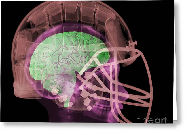 Safety Gear Greeting Cards - X-ray Of Head In Football Helmet Greeting Card by Ted Kinsman
